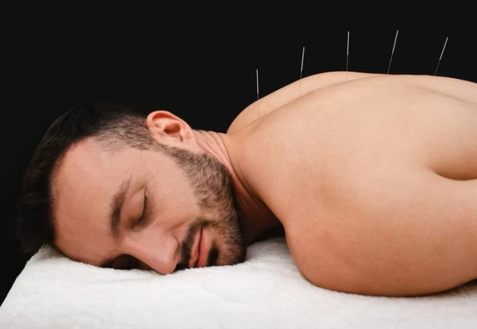 5 Best Acupuncture in Manchester