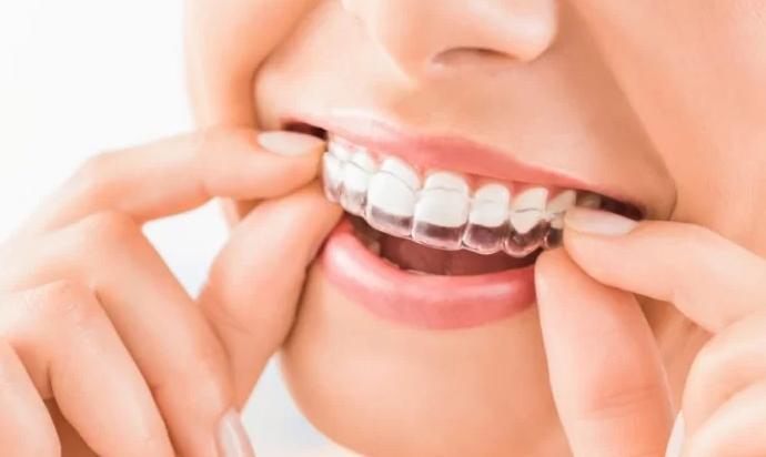 5 Best Orthodontists in Birmingham