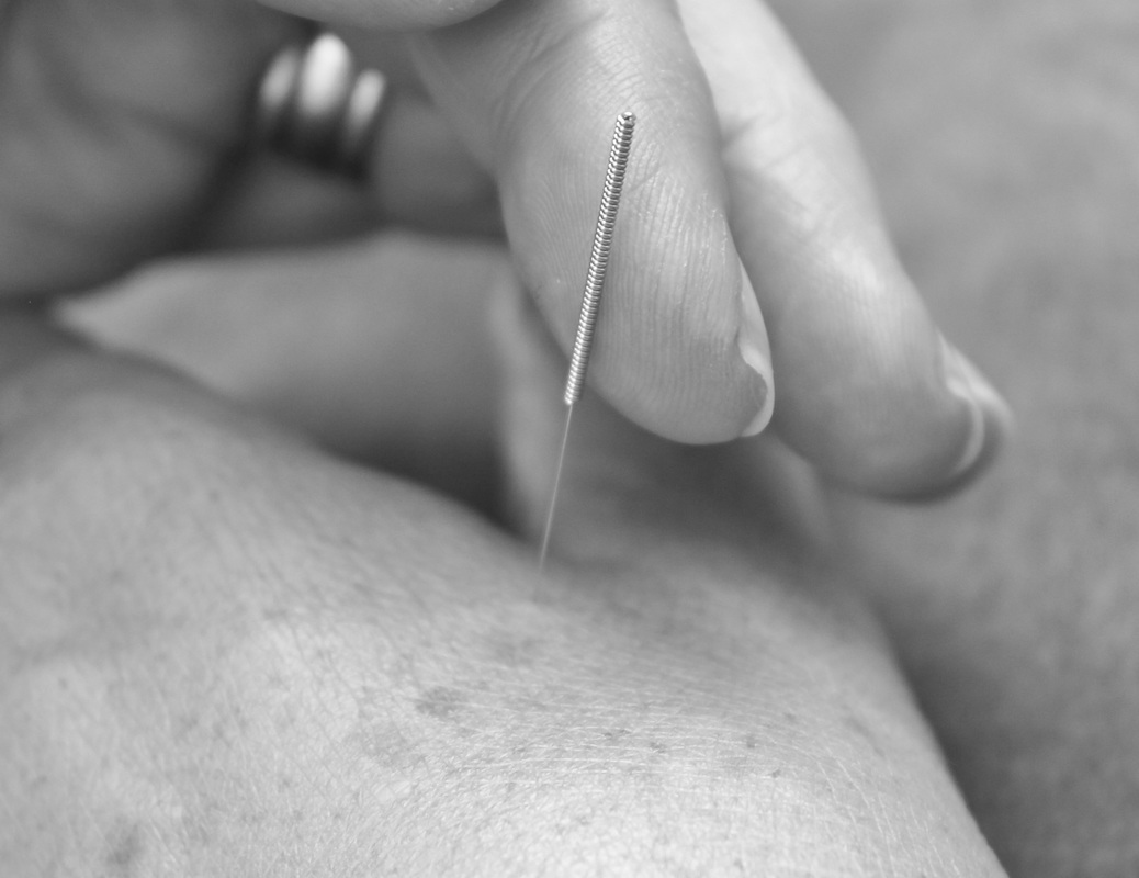 Gaynor Hollis Acupuncture (Airmed Acupuncture)