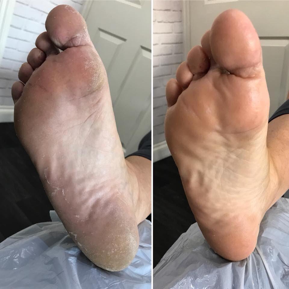 Burnopfield Foot Clinic