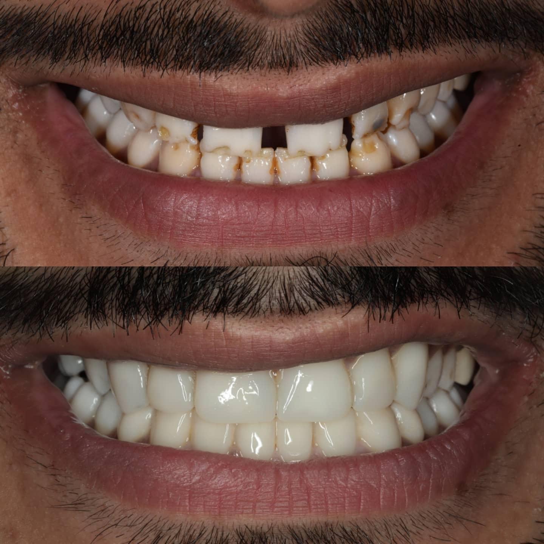 Sutton Aesthetic Dentistry