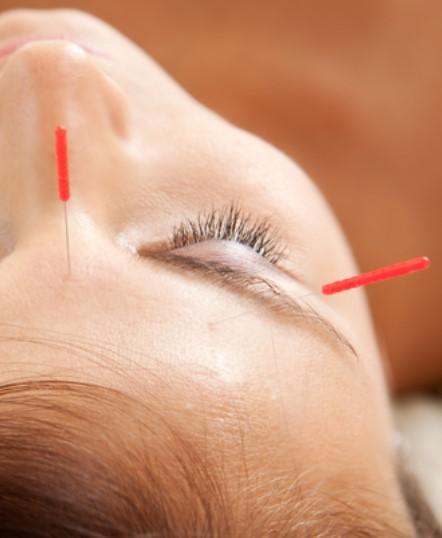 Ann Gilbertson Acupuncture